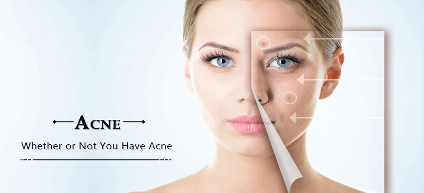 acne, how to get rid of acne, acne treatment