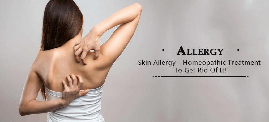 allergy symptoms, allergy medicine
