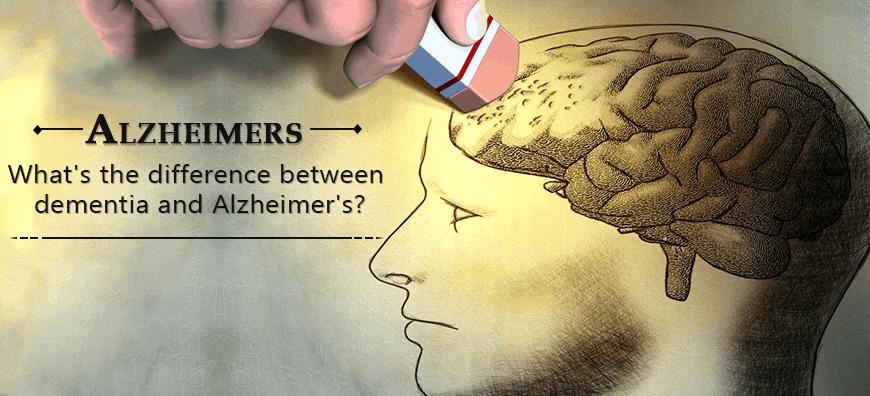 Alzheimer's Disease, Alzheimers